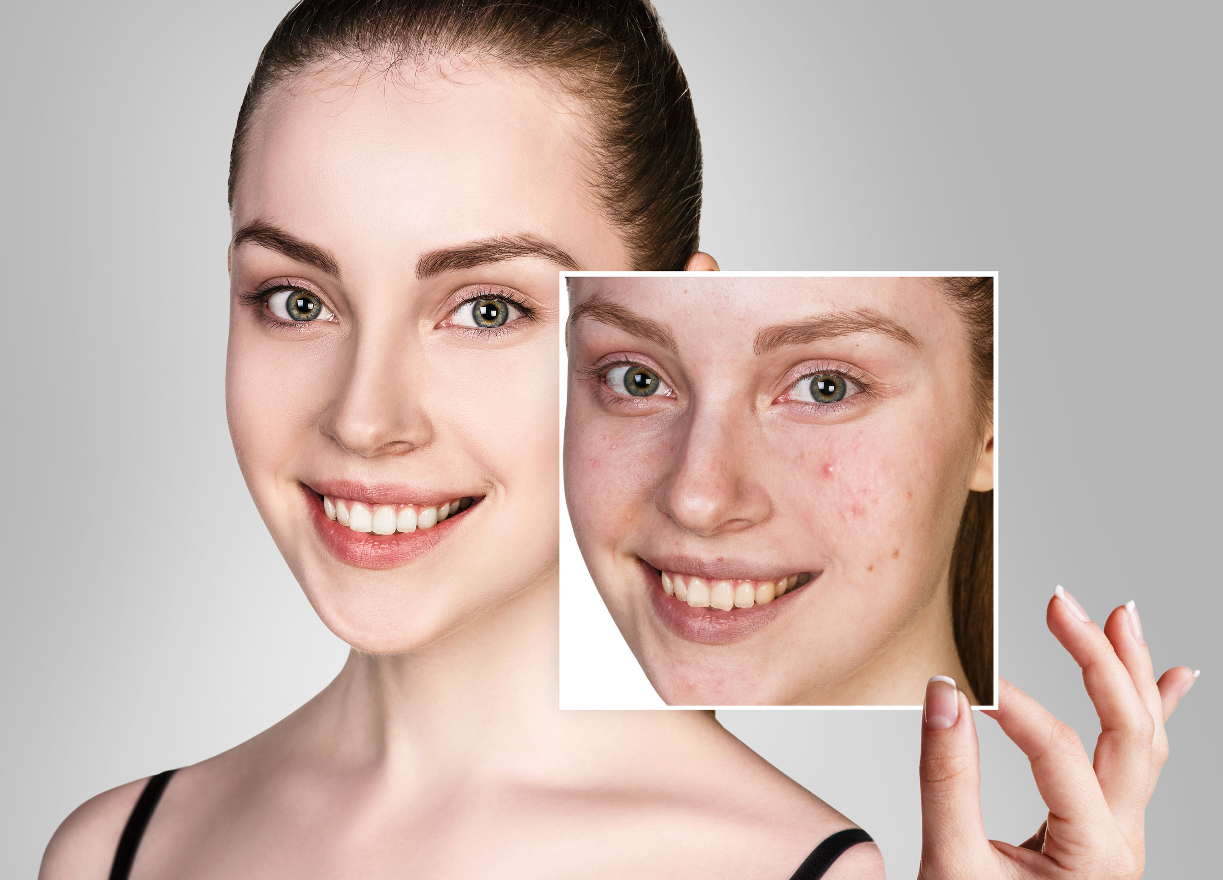 Best BB Cream for Sensitive Skin - June 2021 Reviews and